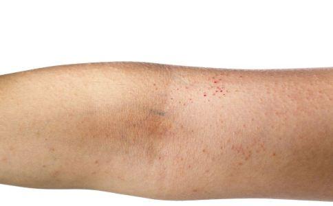 皮肤过敏会带来哪些危害 皮肤过敏如何预防 皮肤过敏如何护理