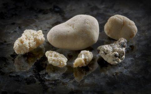 胆结石怎么预防 如何预防胆结石 胆结石的预防方法