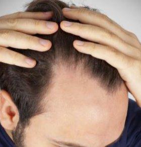 脱发是什么原因 脱发怎么办 如何预防脱发