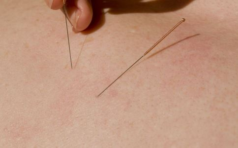 针灸出现意外怎么办 针灸晕针怎么办 针灸过程断针有什么方法