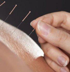 针灸减肥后怎么吃 针灸减肥后吃什么 针灸减肥的注意事项
