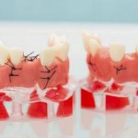 老人佩戴假牙后的5个注意事项要了解