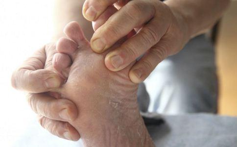 脚臭怎么办 如何预防脚气 有脚气怎么治疗