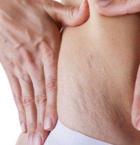 产后如何淡化去除妊娠纹 妊娠纹怎么去除 妊娠纹痒怎么办
