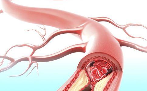 脑血栓对身体有哪些影响 哪些人容易患上脑血栓 脑血栓的危害有哪些