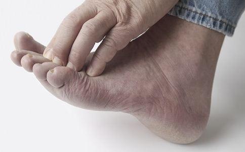 诱发灰指甲的因素是什么 护理灰指甲怎么做 如何预防灰指甲