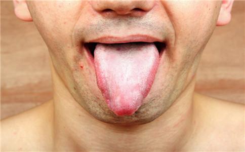 早期舌癌有哪些症状 早期舌癌怎么治疗 如何预防舌癌