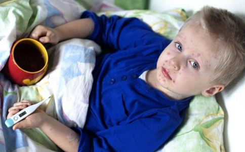 怎样控制水痘最好 水痘并发症有哪些 如何护理水痘患儿