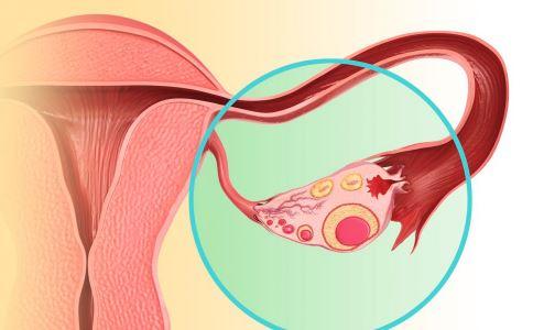 卵巢癌早期有哪些症状 绝经后的女性如何检查卵巢癌 怎样预防卵巢癌的发生
