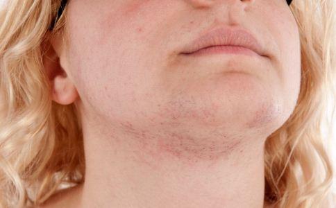 夏天皮肤过敏的原因有哪些 皮肤过敏的原因有哪些 皮肤过敏有哪些原因