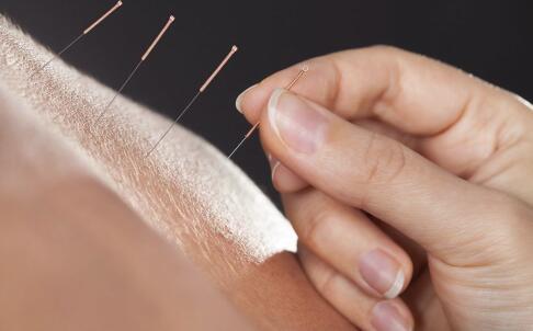 针灸减肥需要多长时间 针灸减肥要坚持多久才有效 针灸减肥的方法有哪些