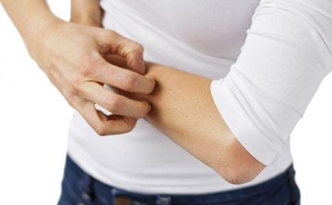 如何区别阴虱病和疥疮 阴虱病和疥疮的区别方法 如何治疗阴虱病