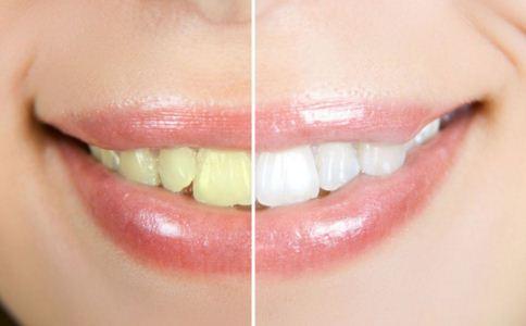 美白牙齿有哪些方法 如何美白牙齿 美白牙齿的适用人群是哪些