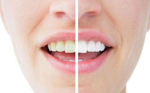 牙齿贴面修复牙齿是有效的方式吗 牙齿贴面修复有哪些类型 牙齿贴面修复有什么效果