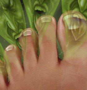 哪些人容易脚臭 治疗脚臭的方法 中医治疗脚臭偏方