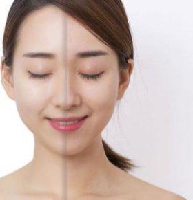 面部黄褐斑怎么去除 如何去除黄褐斑 中医去黄褐斑的方法