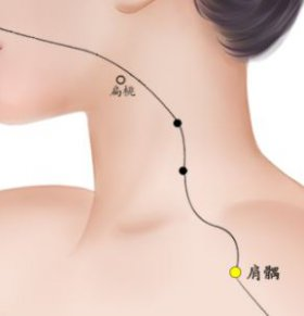 如何治疗肩周炎 针灸肩周炎用什么穴位 哪些穴位能治疗肩周炎