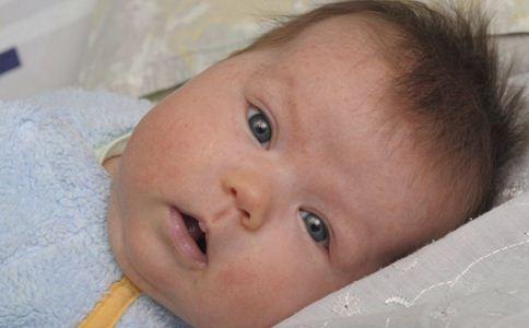 宝宝夏季长痱子怎么办 宝宝夏季长痱子如何护理 宝宝夏季长痱子的原因