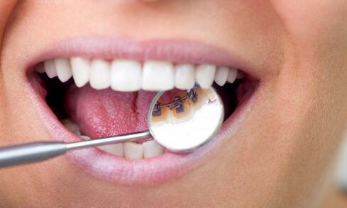 牙周炎有什么症状 牙周炎的治疗方法 如何治疗牙周炎