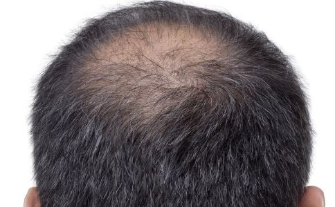 脱发怎么办 脱发如何预防 脱发吃什么好