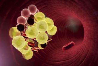 全国血管健康日 血管病变的症状 如何保护血管健康