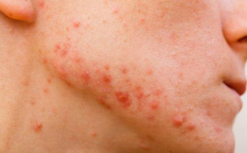 经常摸脸会导致痤疮吗 怎么预防痤疮 痤疮怎么预防