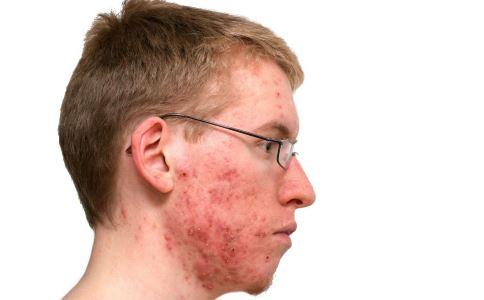 青春痘如何治疗 青春痘有什么治疗方法 青春痘的原因有哪些