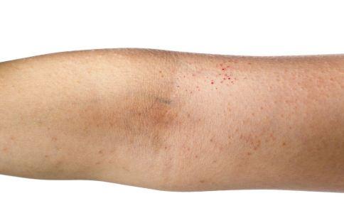 皮肤瘙痒要怎么改善 皮肤瘙痒怎么缓解 怎么缓解皮肤瘙痒