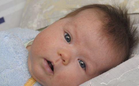 小儿紫癜怎么办 孩子患上紫癜怎么治疗 中医治疗小儿紫癜的方法