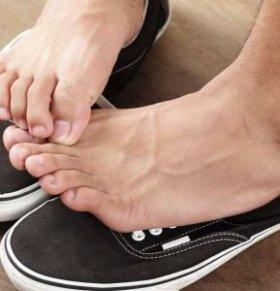 如何治疗脚气呢 怎么治疗脚气 泡脚能治疗脚气吗