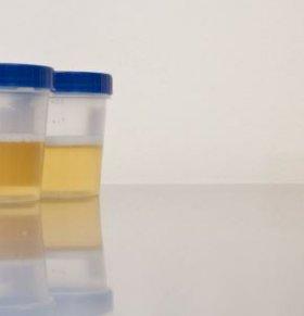 泡沫尿是肾虚吗 尿液可以看肾脏健康吗 从尿液如何看肾脏健康