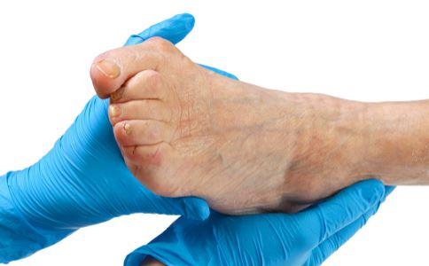 老人脚肿是什么原因 老人脚肿怎么消肿 脚肿怎么消下去