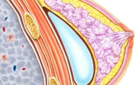 40万隆胸成植物人 隆胸的危害 注射隆胸术的危害