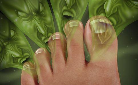 脚臭是什么原因 女人脚臭的原因有哪些 脚臭怎么治疗