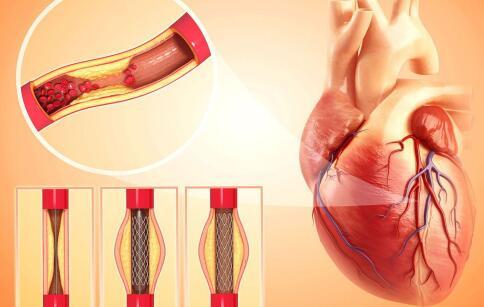 心脑血管疾病的治疗 心脑血管疾病如何预防 心脑血管疾病怎么治疗