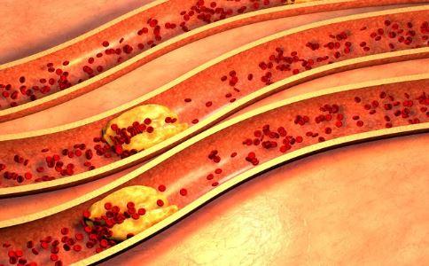 怎么测下肢血管通不通 下肢血管堵塞的症状 下肢血管堵塞早期症状