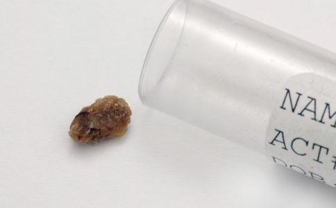尿石症怎么碎石 尿石症碎石有哪些方法 怎样预防尿石症