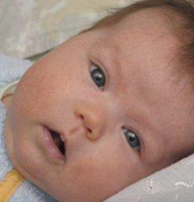 宝宝湿疹怎么办 宝宝湿疹如何护理 宝宝湿疹的原因