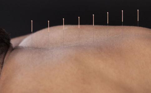 艾灸和针灸的区别 艾灸和针灸有什么区别 艾灸能治疗哪些疾病