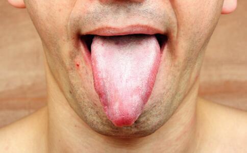 舌上溃疡三次手术后死亡 什么是舌上溃疡 舌上溃疡怎么办