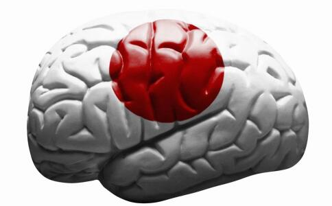连续熬夜备考突发脑出血 导致脑出血的原因 脑出血是怎么引起的