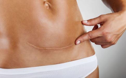 剖腹产疤痕增生的原因 伤口处理不当引起感染