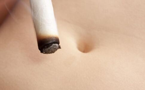 艾灸发痒是什么原因 是正常排毒吗