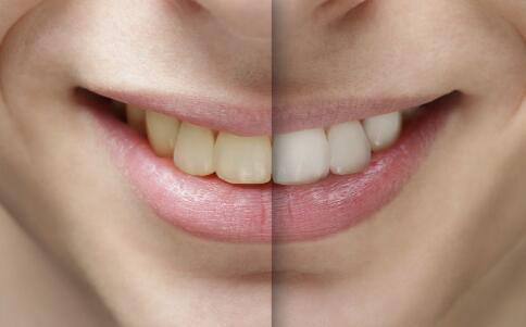 洗牙会伤害牙齿吗 洗牙对牙齿有什么伤害 洗牙的好处