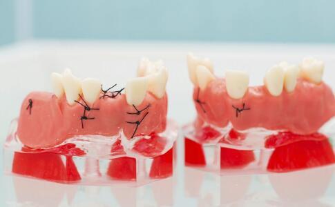 如何美白牙齿 美白牙齿有什么方法 美白牙齿吃什么