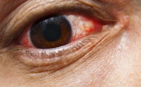 轻微青光眼怎么治疗 青光眼怎样预防 青光眼应该注意什么
