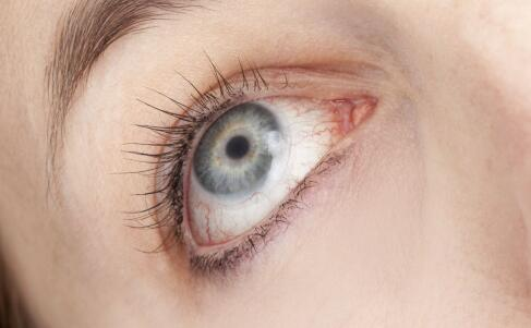 干眼症怎么办 如何缓解干眼症 干眼症的症状有哪些