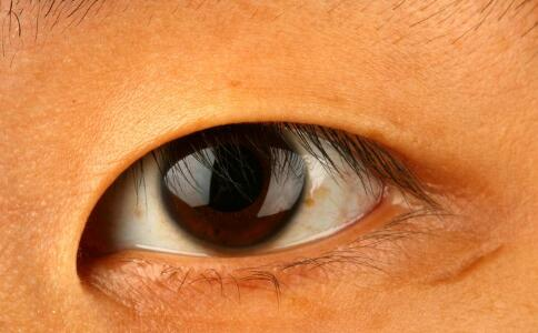 哪些原因会造成眼外伤 眼外伤如何急救 眼外伤的原因有哪些