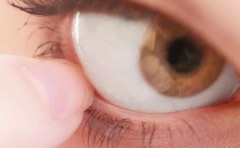 视网膜母细胞瘤 脉络膜黑色素瘤