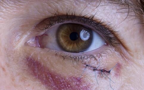 如何预防近视 近视的预防方法 怎么预防近视